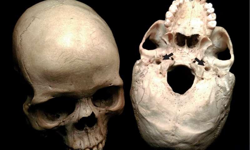 Un nuevo estudio sugiere que la cantidad de sangre que llega al cerebro fue la clave en la evolución de la inteligencia humana