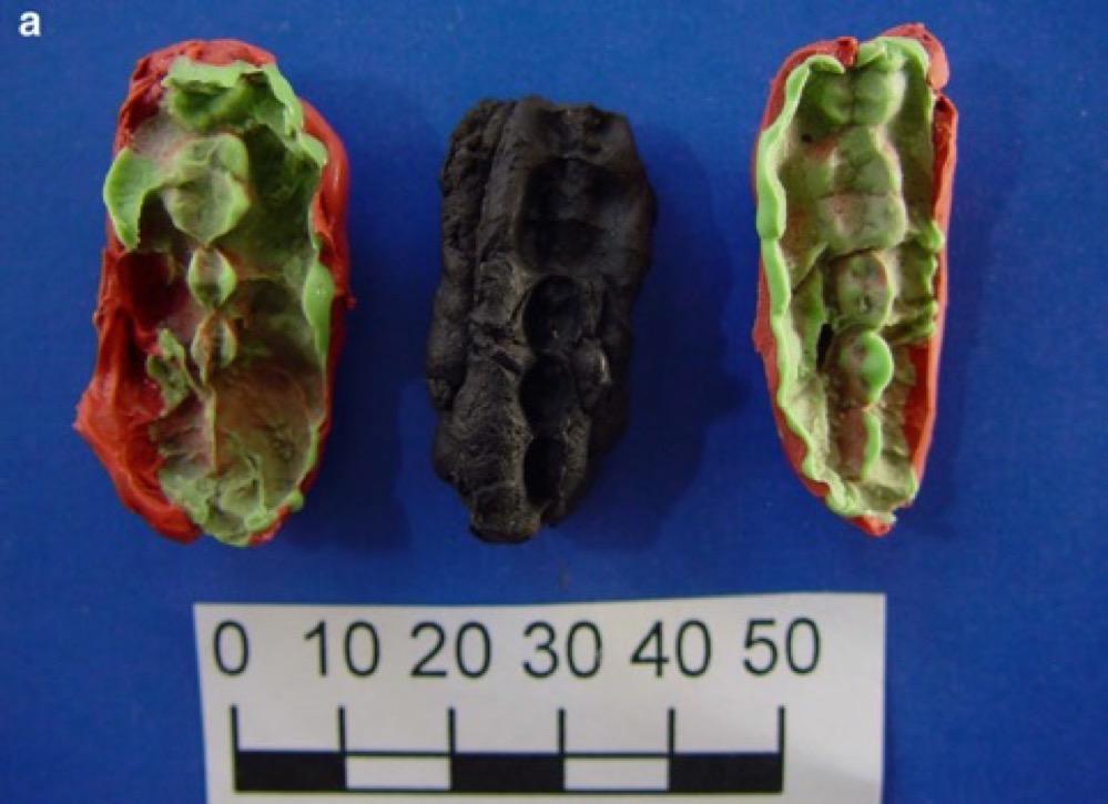 Secuencian ADN procedente de resina de abedul masticada por cazadores-recolectores escandinavos hace más de 10.000 años