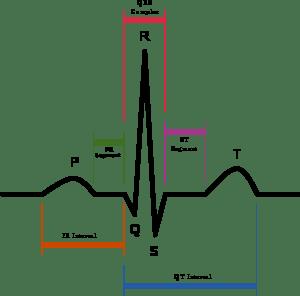 Aprendiendo: Alerta Citalopram -Prolongación Intervalo QT