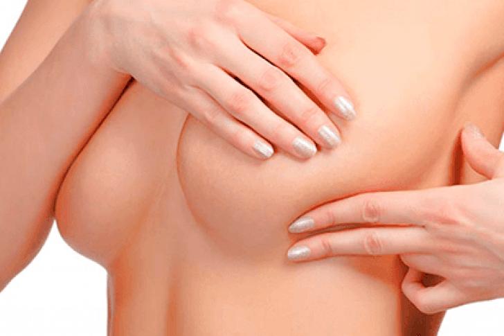 Diagnostican dos nuevos casos de cáncer de mama por hora en la Argentina