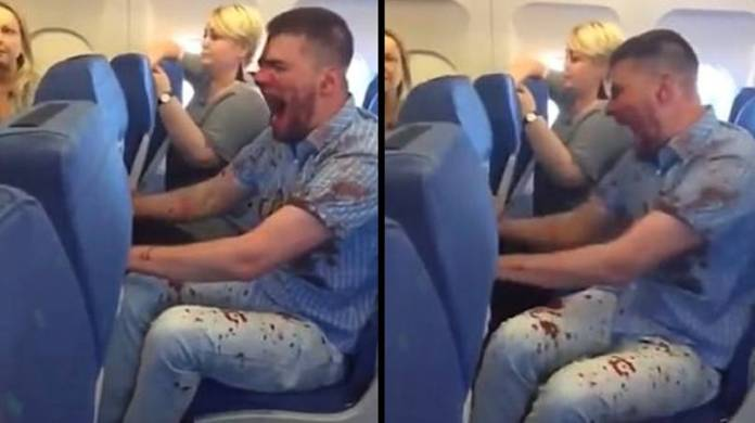 Bloodied Passenger Has To Be Restrained On Flight After Lashing Out