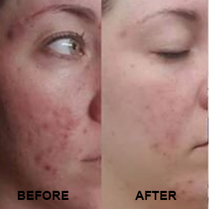 Repechage before and after