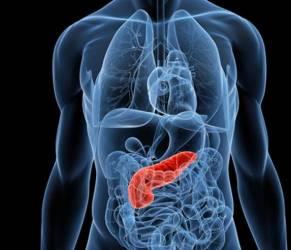 Tumore al pancreas, nuove speranze di cura