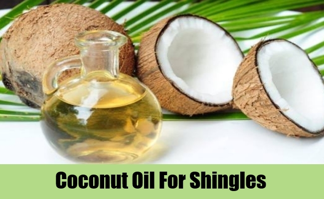6 Popular Natural Treatments For Shingles Lady Care Health