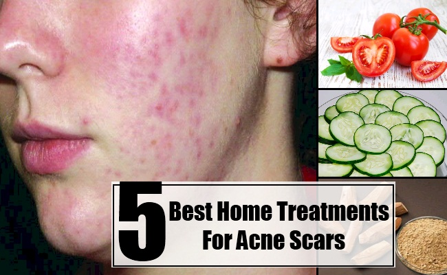 Home Treatments For Acne Scars