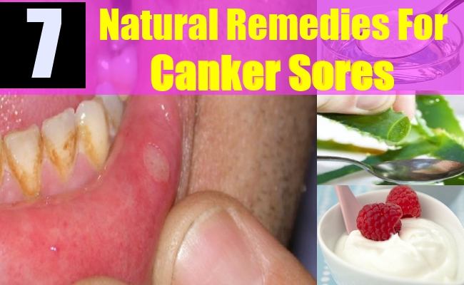 Remedies For Treating Canker Sores