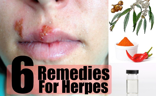 6 Herbal Remedies For Herpes How To Treat Herpes
