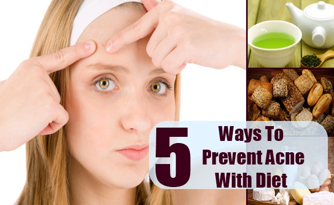 Ways To Prevent Acne With Diet