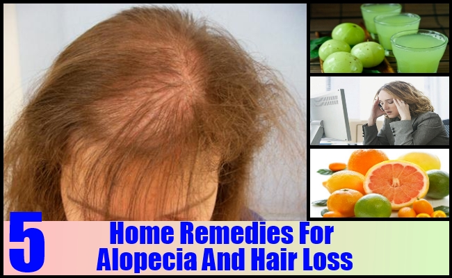 Home Remedies For Alopecia And Hair Loss