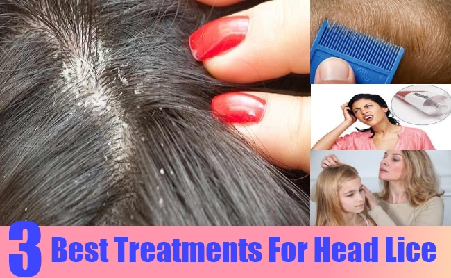 Best Treatments For Head Lice