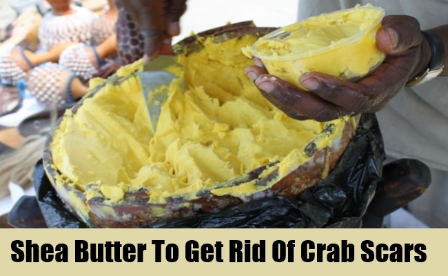 Shea Butter To Get Rid Of Crab Scars