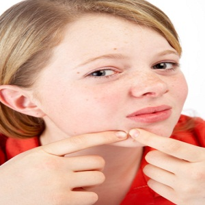 Stop Acne Reinfection