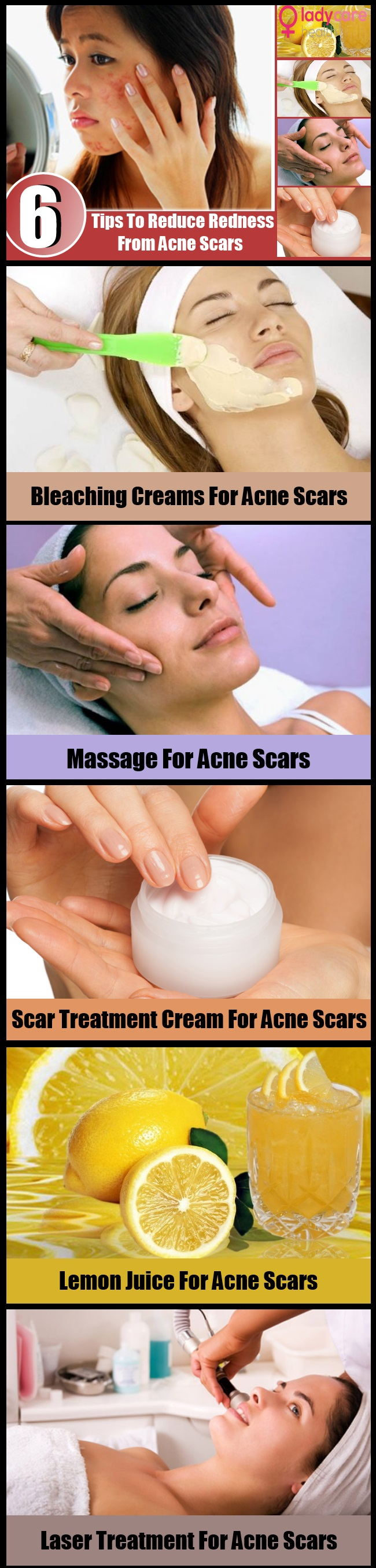6 Tips To Reduce Redness From Acne Scars