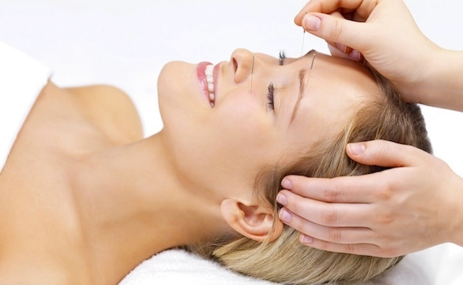 Acupuncture Treatment Methods