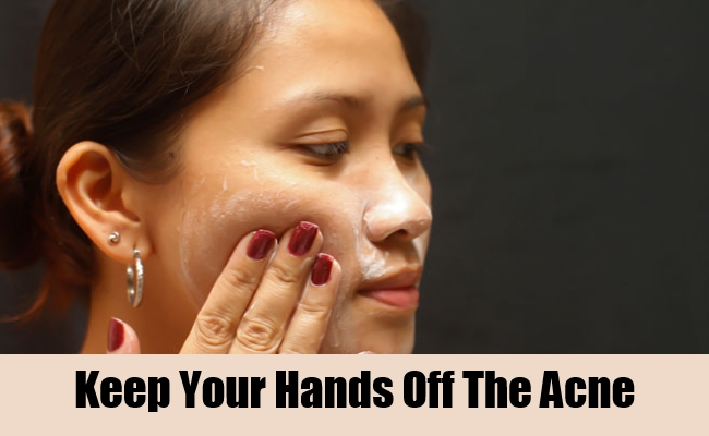 Keep Your Hands Off The Acne