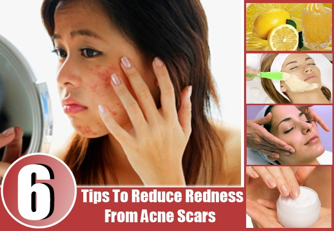 Reduce Redness From Acne Scars