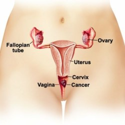 Causes Of Heavy Menstrual Bleeding