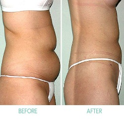 Benefits Of Liposuction For Women