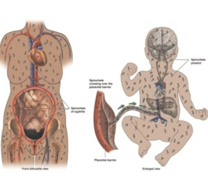 Sexually Transmitted Diseases During Pregnancy