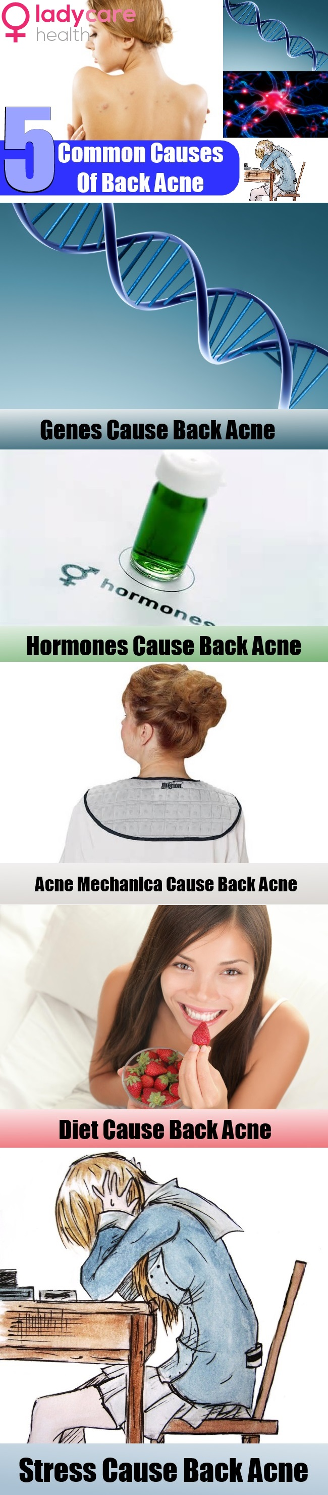 5 Common Causes Of Back Acne