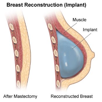 Things To Know About Breast Reconstruction