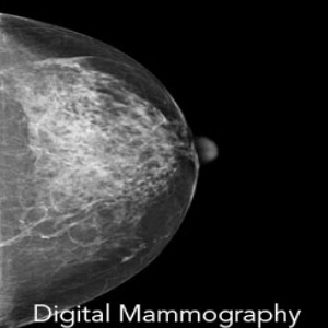 Dense Breast Increases Breast Cancer Risks