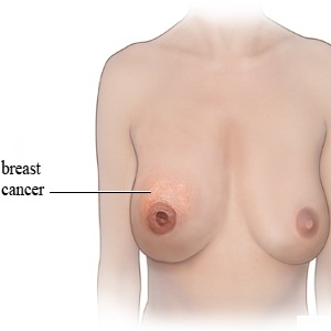 Diagnosis Of Breast Cancer