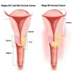 Cervical Cancer Stage 2