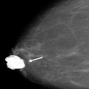Opinion breast lump calcification