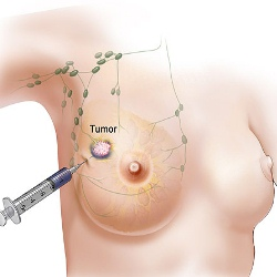 Top 5 Reasons For Breast Cancer