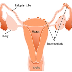 Top 7 Symptoms Of Endometriosis