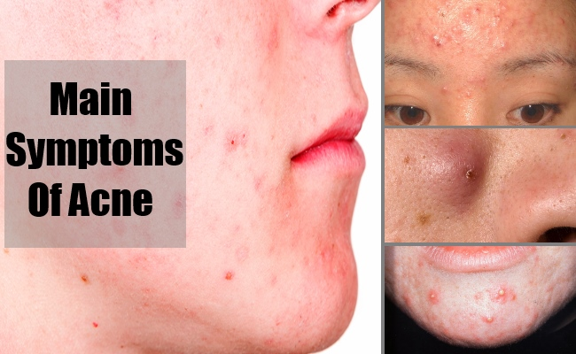 Main Symptoms Of Acne
