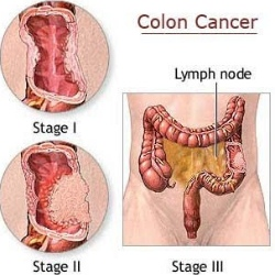 Primary Symptoms Of Colon Cancer