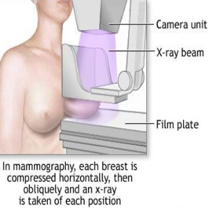 Causes And Treatment Of Breast Lesions