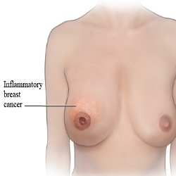Inflammatory breast cancer stage iv