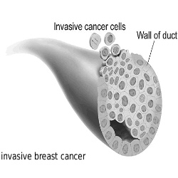 Symptoms And Treatment Of Invasive Breast Cancer