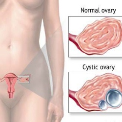 Various Treatment Options For Ovarian Cysts