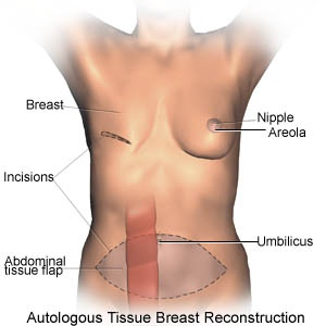 Types Of Reconstructive Breast Surgery Procedures