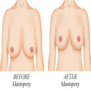 Procedures And Complications Of Breast Uplift