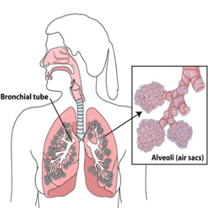 Various Effects Of Breast Cancer
