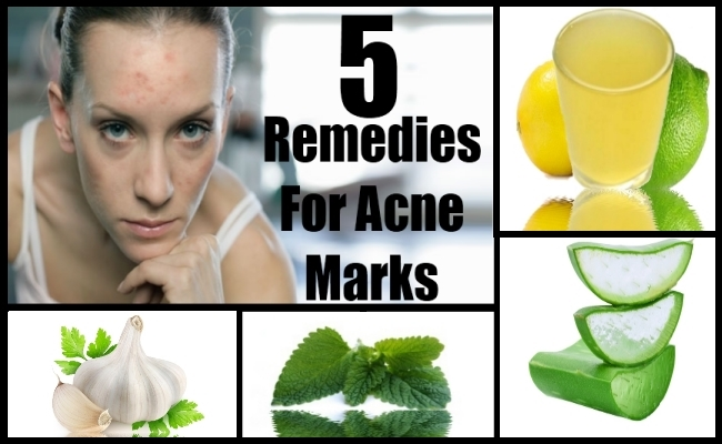 Natural Remedies For Acne Marks