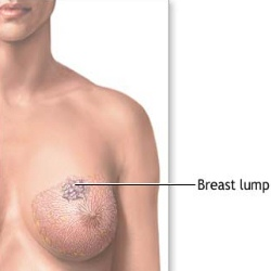 Something breast lumps pain right!