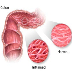 Six Major Symptoms Of Intestinal Disease