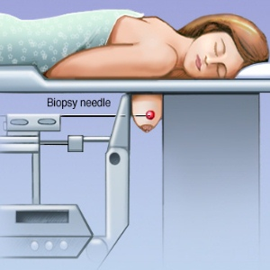 Types And Risk Factors Of Needle Biopsy Of The Breast