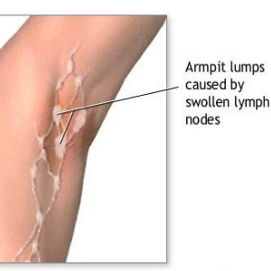 Symptoms Of Cancer In The Lymph Nodes