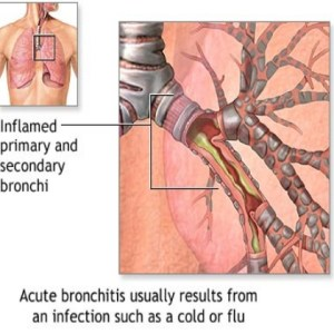 Symptoms And Treatment Options For Acute Asthma