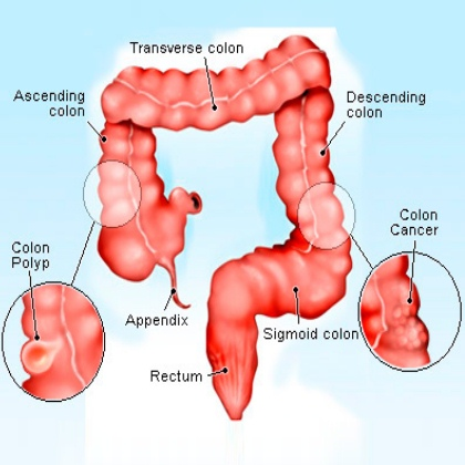 Signs And Symptoms Of Colon Cancer