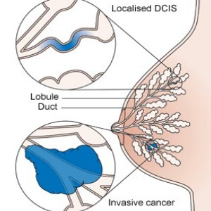 Risk Factors And Symptoms Of Invasive Breast Cancer
