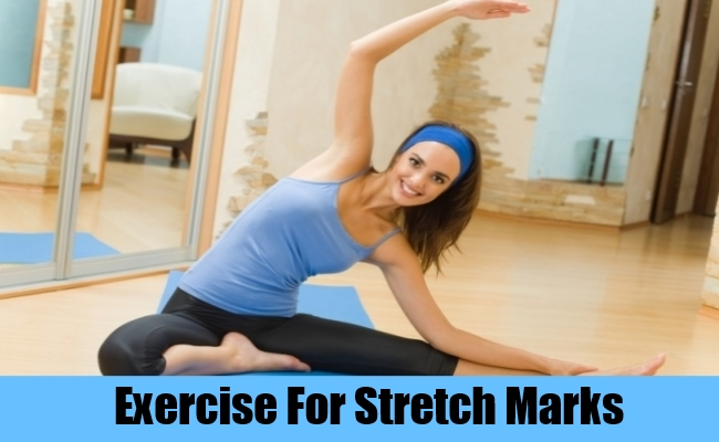 Exercise For Stretch Marks