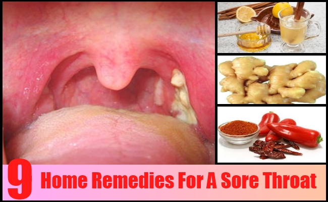 What Is The Best Natural Remedy For A Sore Throat